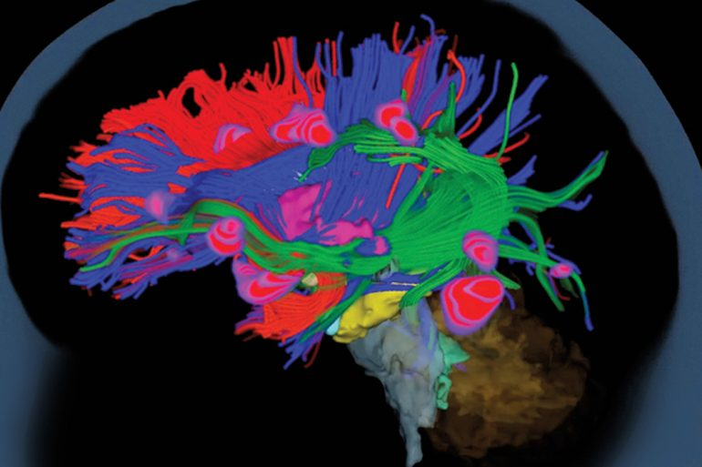 A colorful composite image of a child's brain, produced by the MEG machine at I-LABS